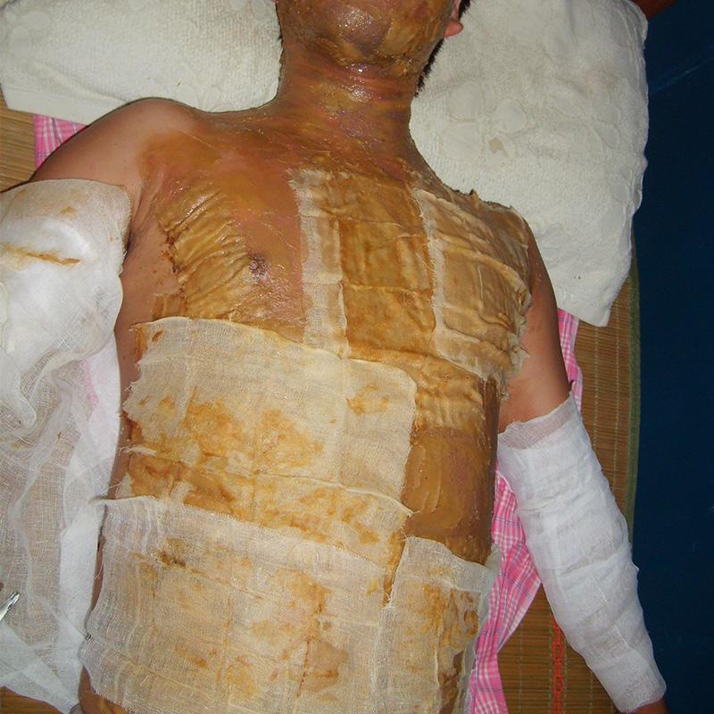上海治疗烫伤厂家