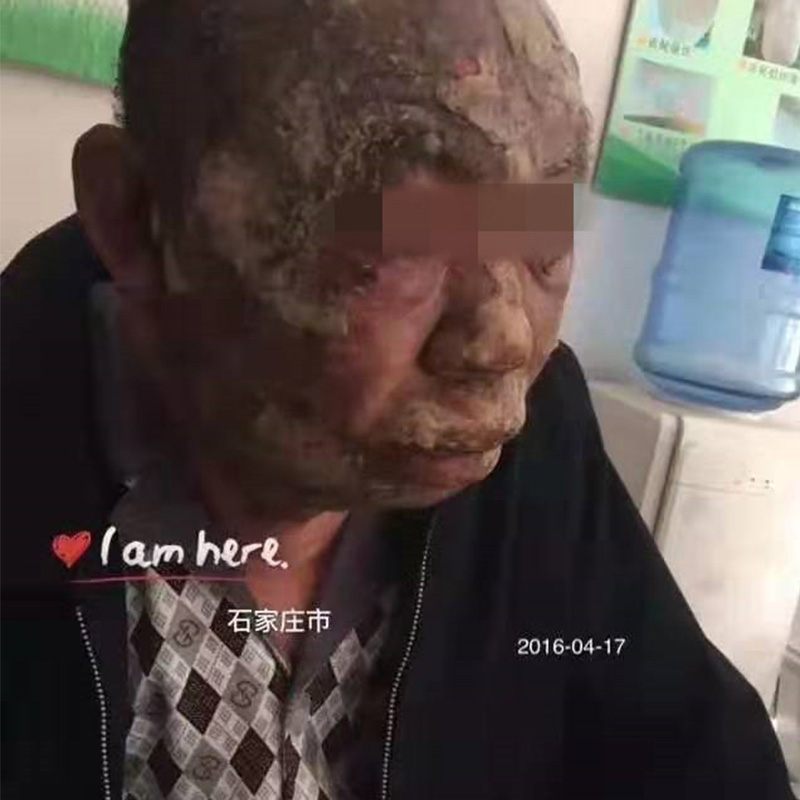 上海无极治疗烫伤