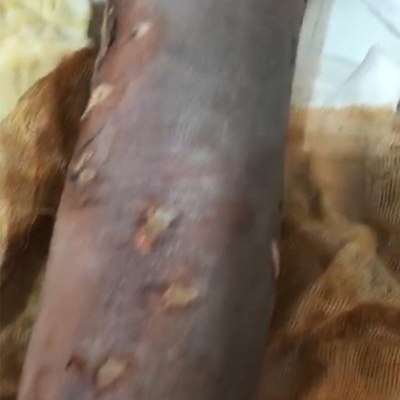 液化气烧伤