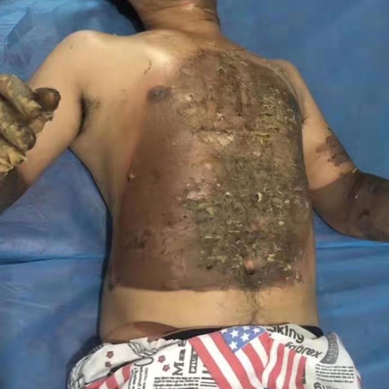 石家庄烧伤瘢痕治疗