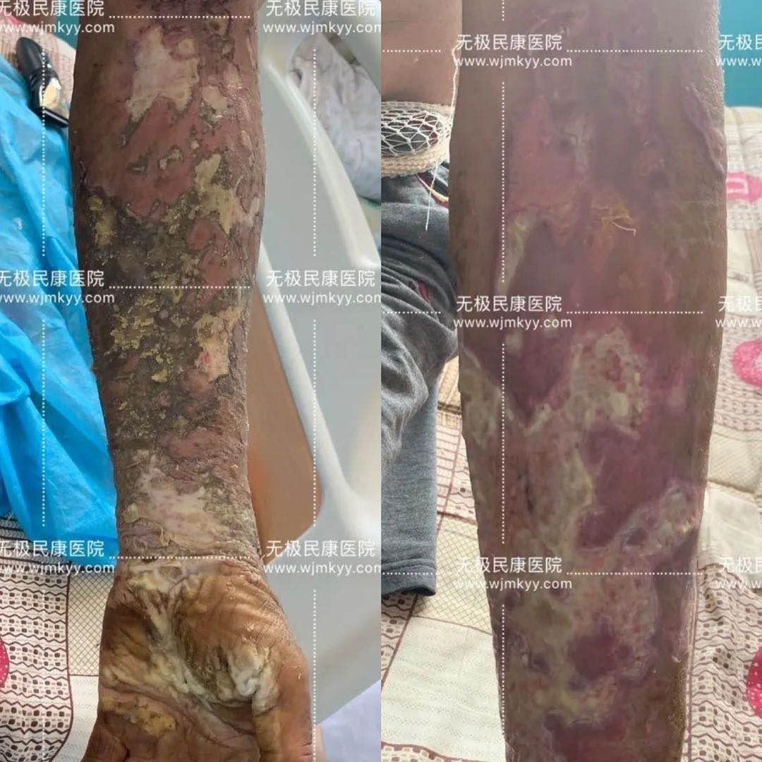 上海化学品工业盐烫伤