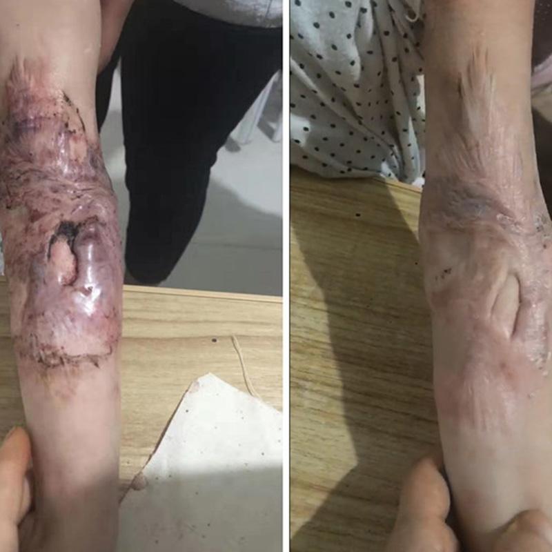 上海疤痕增生