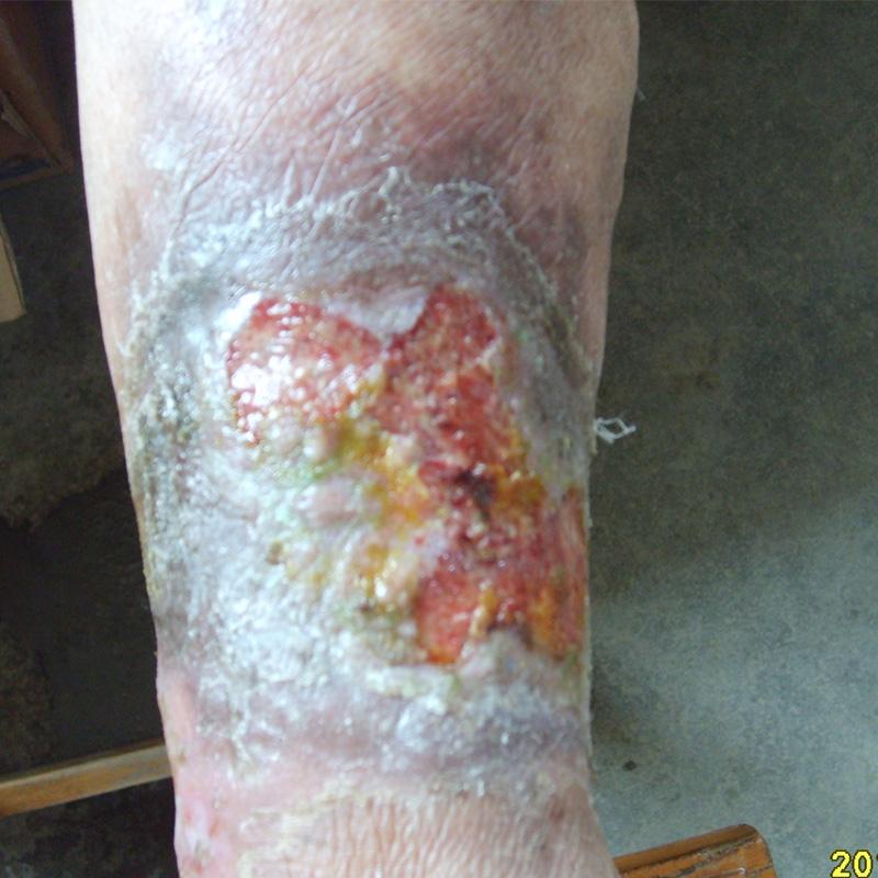 右下肢伤口不愈合